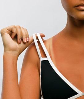 How to Treat a Sunburn 2010-06-30 12:01:35