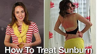 How to Treat Sunburn: Remedies and Tips on Treating Sunburn