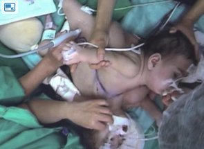 Conjoined Twins Separated in Televised 18-Hour Surgery