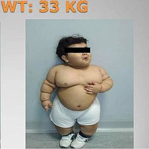 Weight-Loss Surgery For Obese Children