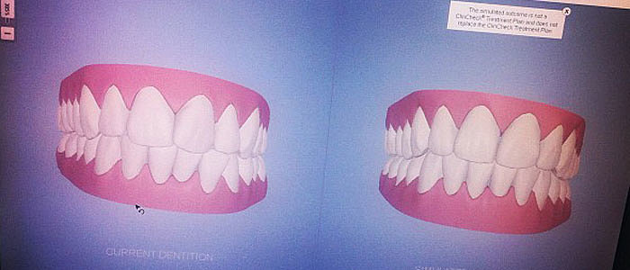 Full Review of Invisalign, Including Before and After Pictures