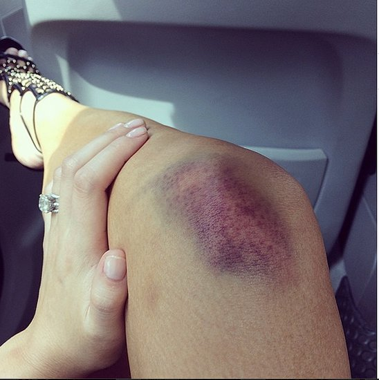 Chrissy Teigen Gets Bruise From Muay Thai Boxing