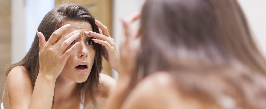 4 At-Home Remedies to Help You Get Rid of Acne