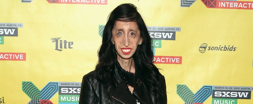 """Ugliest Woman in the World"" Fights Bullies With New Documentary"