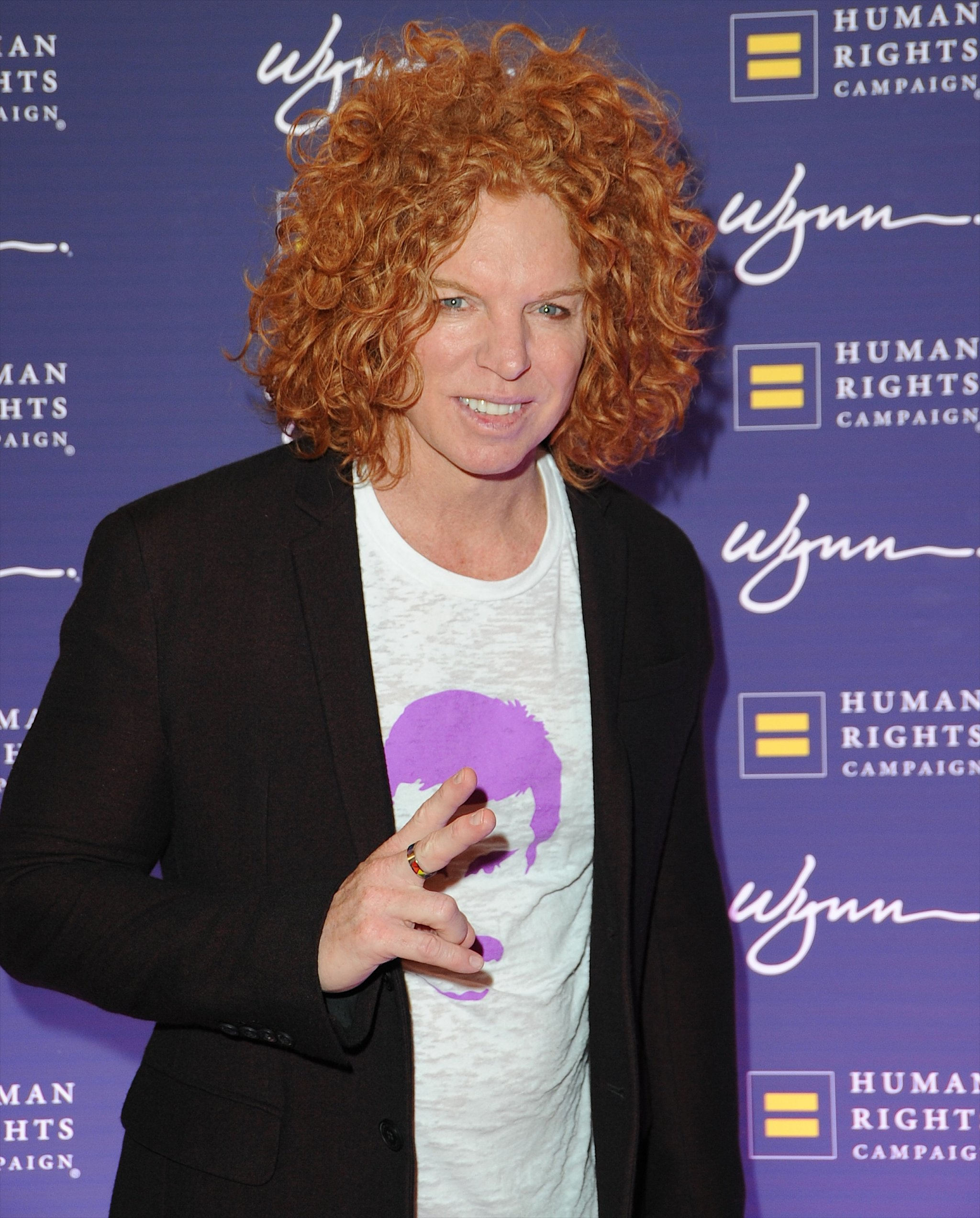 Carrot Top steroids and plastic surgery 01 – Celebrity ...  |Carrot Top 2015