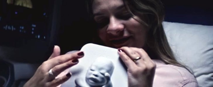 This Mom's Sonogram Surprise Will Move You to Tears