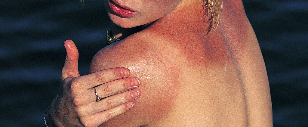 A Natural Approach: 3 Sunburn Remedies