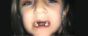 Warning: What This Dentist Does to Child Patients Will Give You Chills