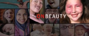 This Documentary Showing the Beauty of Genetic Conditions Will Make You Cry
