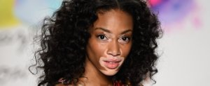 Fan Art or Blackface? These Vitiligo Makeup Tutorials Hit a Sore Spot