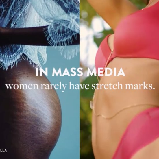 Video About Stretch Marks
