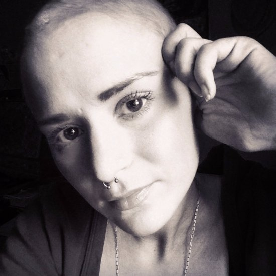 Alopecia Sufferer's GoFundMe Page