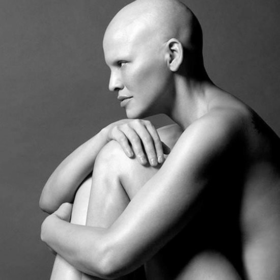 Model With Breast Cancer Posts Stunning, Raw Photos