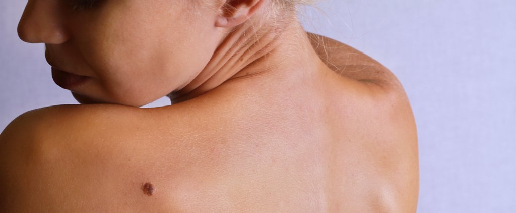 How to Know If Your Mole Is a Sign of Something Serious