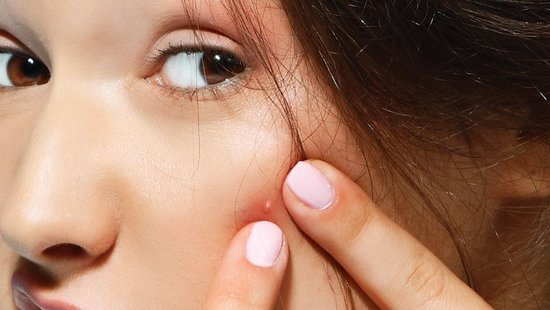 This Is The Fastest Way To Heal A Zit