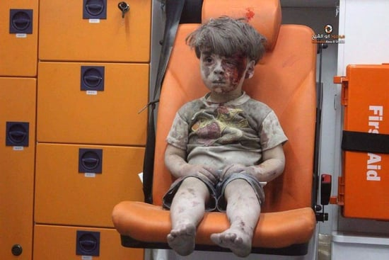 Viral Photo of Injured Boy Shows the Human Devastation of the War in Syria