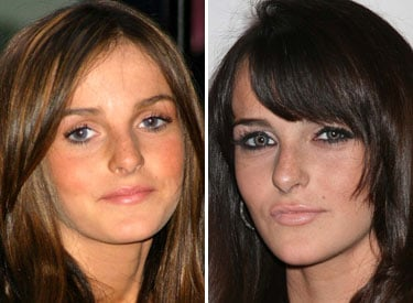 Ali Lohan Gets Lip Injections