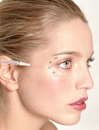 The New Alternative to Botox Uses Cold to Relax Wrinkles 2011-04-04 14:54:37