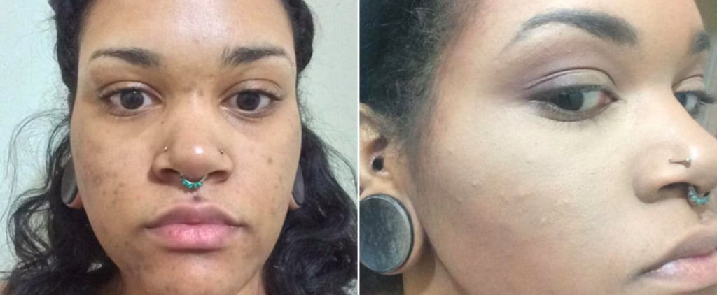 Proof That Color-Correcting Can Hide Acne Scars Like Magic