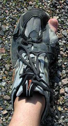 Spring Running Tip:  Prevent Knee Pain