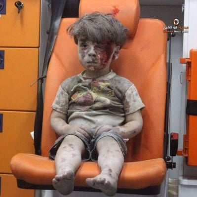 Photo and Video of Confused Syrian Boy Injured in Aleppo