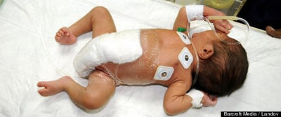 Doctors Save Baby Born With Six Legs