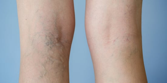 6 Myths About Varicose Veins