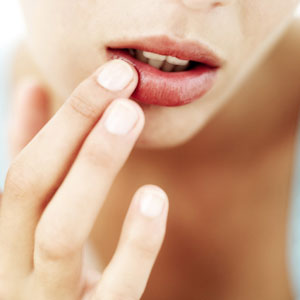 Preventing and Healing Chapped Lips