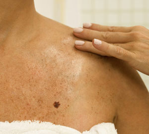 How to Tell If a Mole Is Cancerous