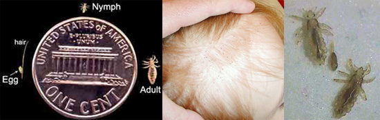 Head Lice: Do You Know the Facts?