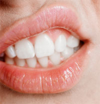 Obesity May Cause Bad Breath