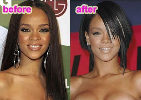 Rihanna had a nose surgery?