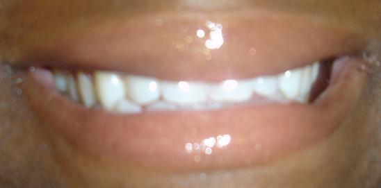 Bare Escentuals Lipgloss