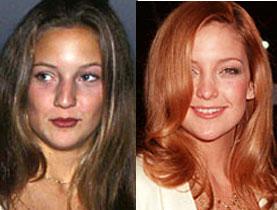 Has Kate Hudson had a nose job?