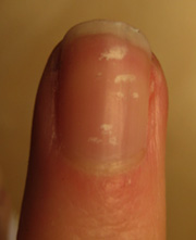 What Are Those White Spots in My Nails?