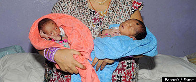 Mother Gives Birth to Twins From Separate Wombs