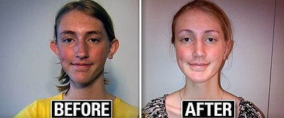Non-Profit Provides Free Plastic Surgery to Kids Bullied Over Their Looks (VIDEO)