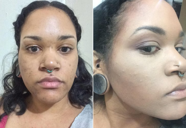 Color Correcting Acne Scars Before And After Popsugar Beauty